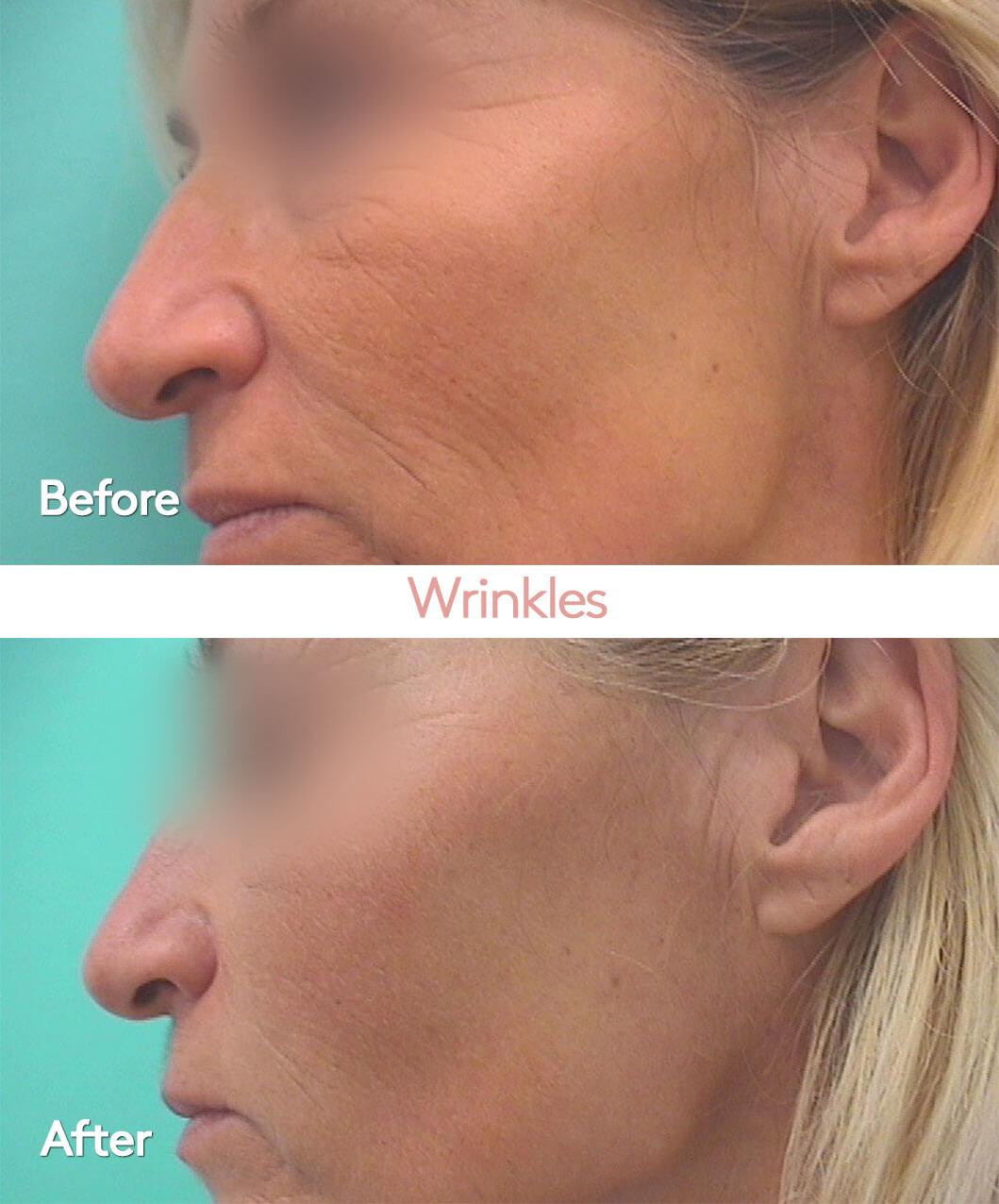 EN-Helight-AA-wrinkles